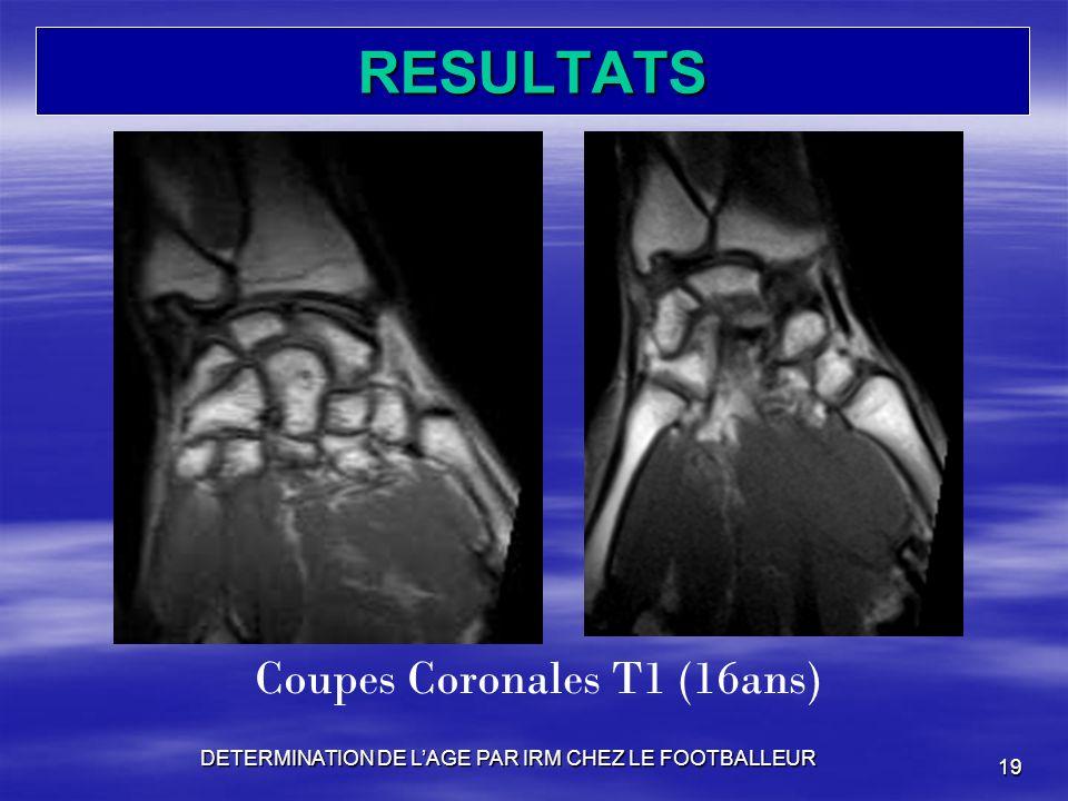 RESULTATS DETERMINATION DE LAGE PAR IRM CHEZ LE FOOTBALLEUR 19 Coupes Coronales T1 (16ans)
