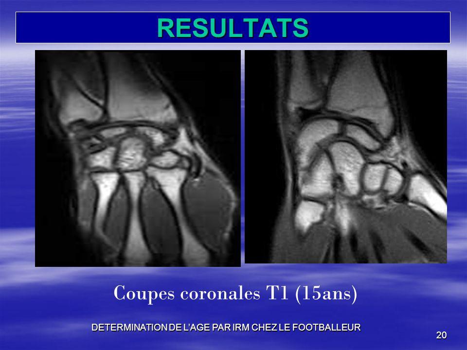 RESULTATS DETERMINATION DE LAGE PAR IRM CHEZ LE FOOTBALLEUR 20 Coupes coronales T1 (15ans)