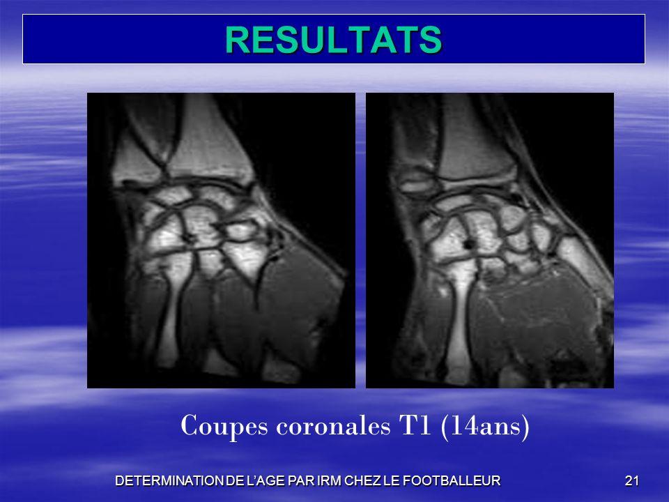 RESULTATS DETERMINATION DE LAGE PAR IRM CHEZ LE FOOTBALLEUR21 Coupes coronales T1 (14ans)