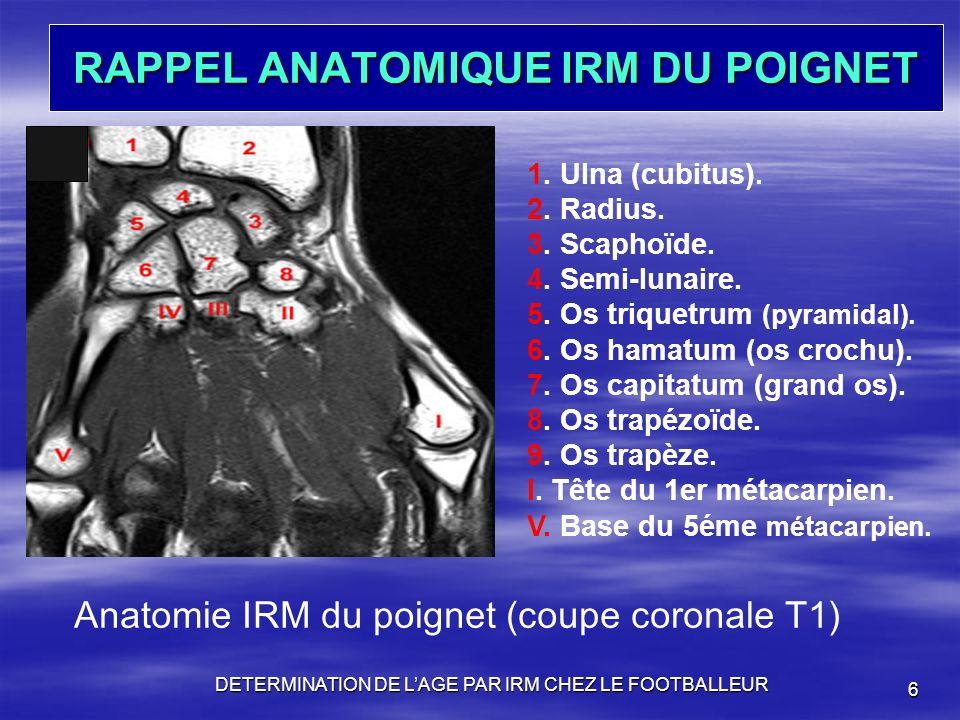 RAPPEL ANATOMIQUE IRM DU POIGNET DETERMINATION DE LAGE PAR IRM CHEZ LE FOOTBALLEUR 6 Anatomie IRM du poignet (coupe coronale T1) 1. Ulna (cubitus). 2.