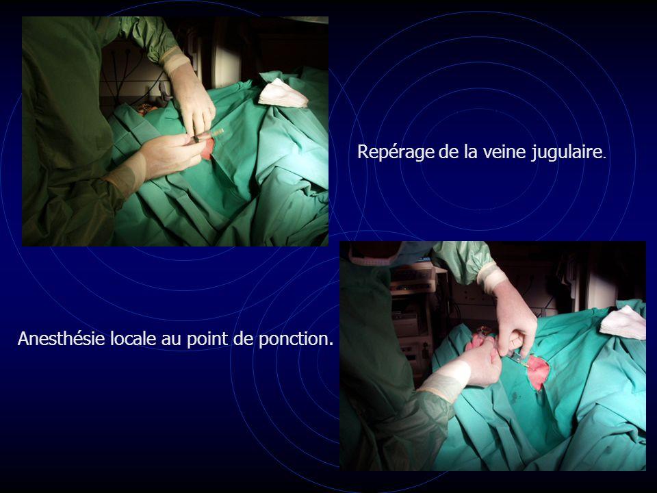 Repérage de la veine jugulaire. Anesthésie locale au point de ponction.