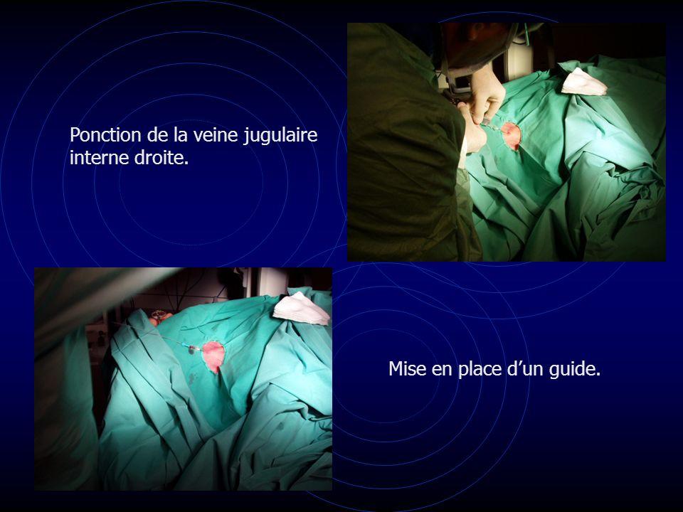 Ponction de la veine jugulaire interne droite. Mise en place dun guide.