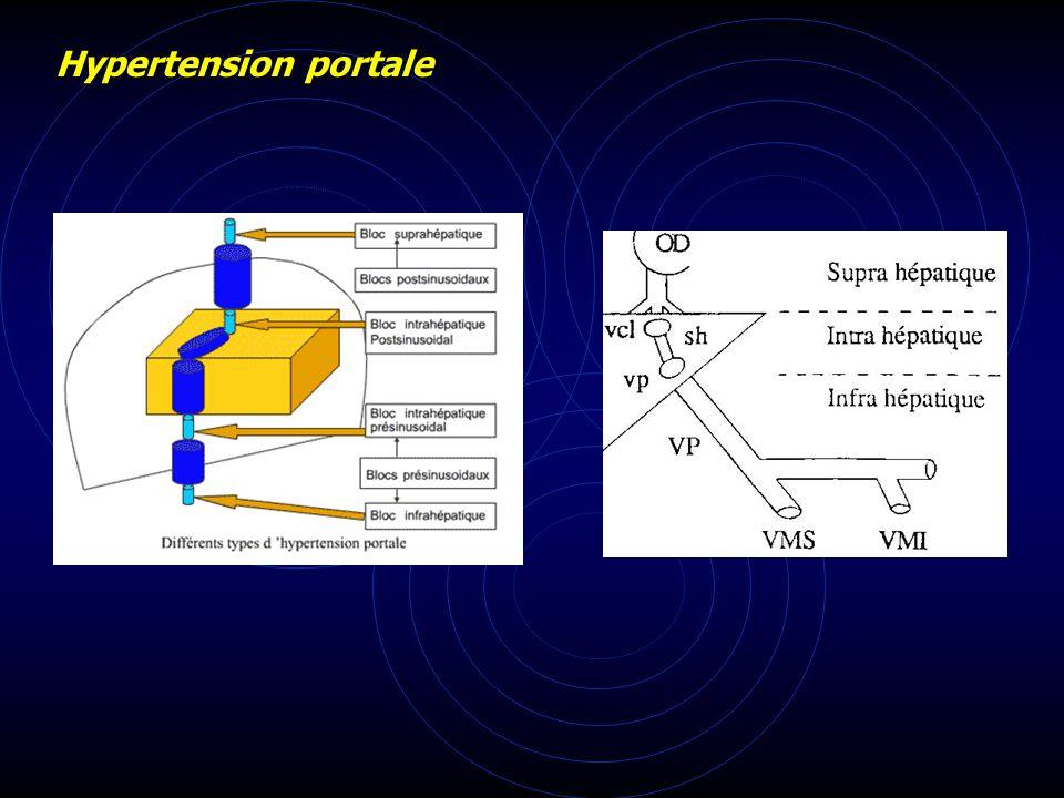 Hypertension portale