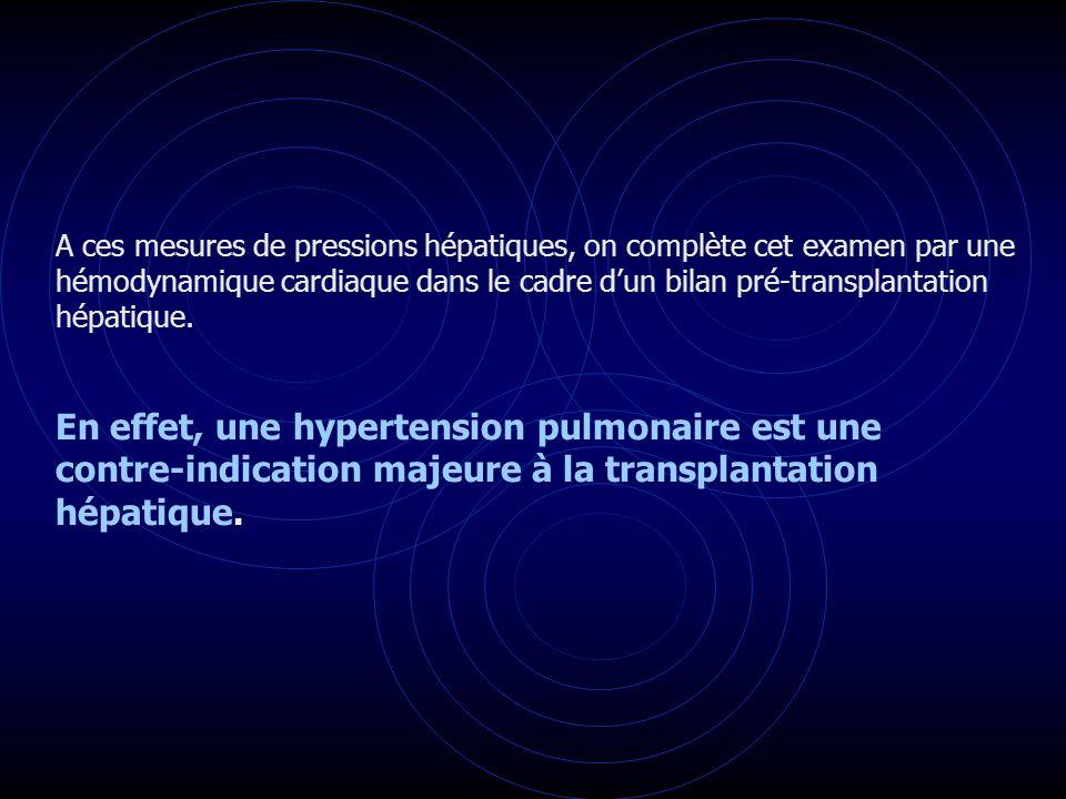 A ces mesures de pressions hépatiques, on complète cet examen par une hémodynamique cardiaque dans le cadre dun bilan pré-transplantation hépatique. E