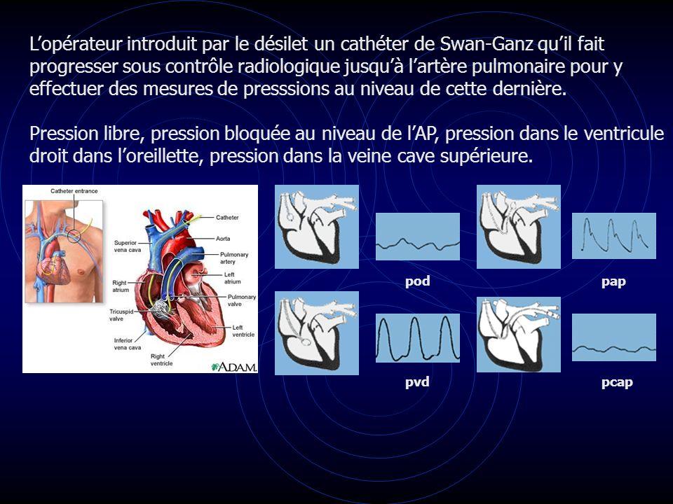 Lopérateur introduit par le désilet un cathéter de Swan-Ganz quil fait progresser sous contrôle radiologique jusquà lartère pulmonaire pour y effectue