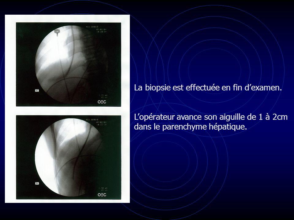 La biopsie est effectuée en fin dexamen. Lopérateur avance son aiguille de 1 à 2cm dans le parenchyme hépatique.