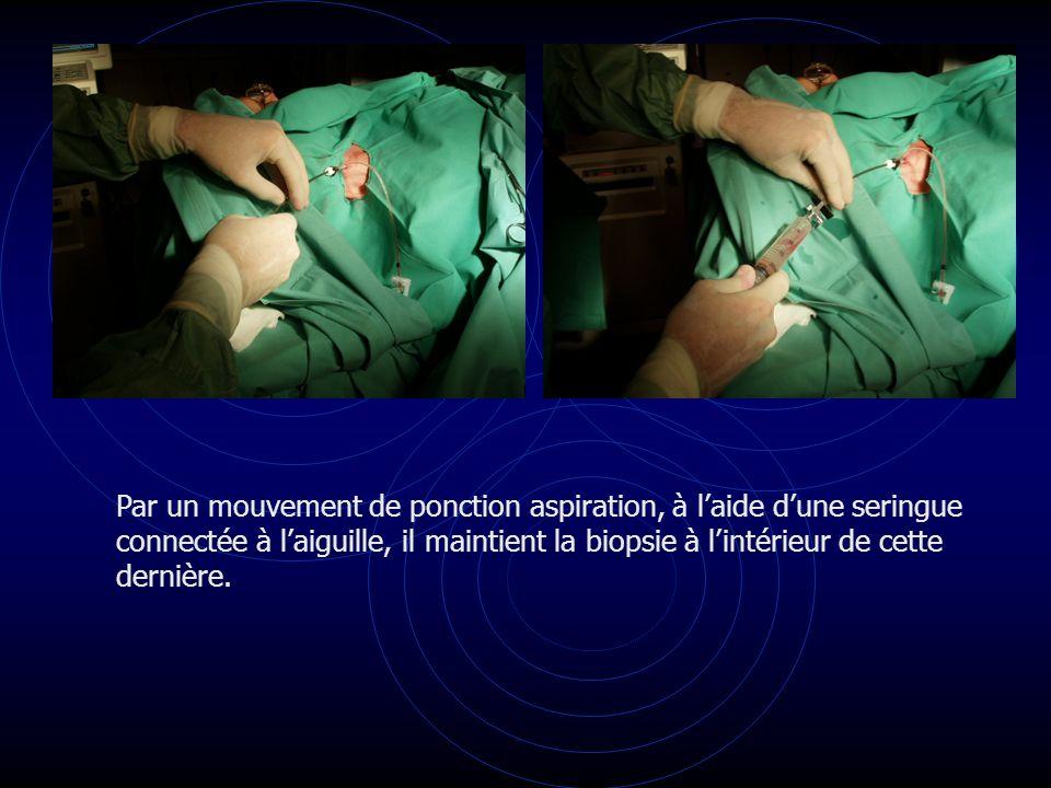 Par un mouvement de ponction aspiration, à laide dune seringue connectée à laiguille, il maintient la biopsie à lintérieur de cette dernière.