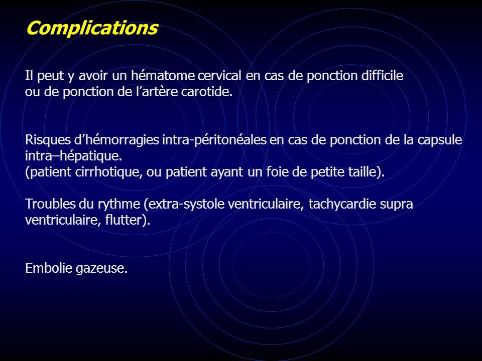 Complications Il peut y avoir un hématome cervical en cas de ponction difficile ou de ponction de lartère carotide. Risques dhémorragies intra-périton