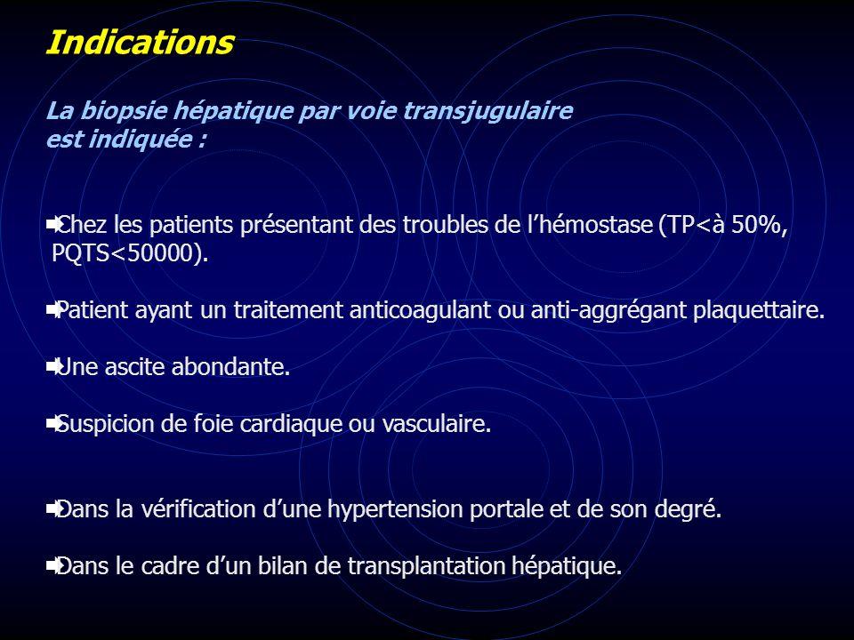 Indications La biopsie hépatique par voie transjugulaire est indiquée : Chez les patients présentant des troubles de lhémostase (TP<à 50%, PQTS<50000)