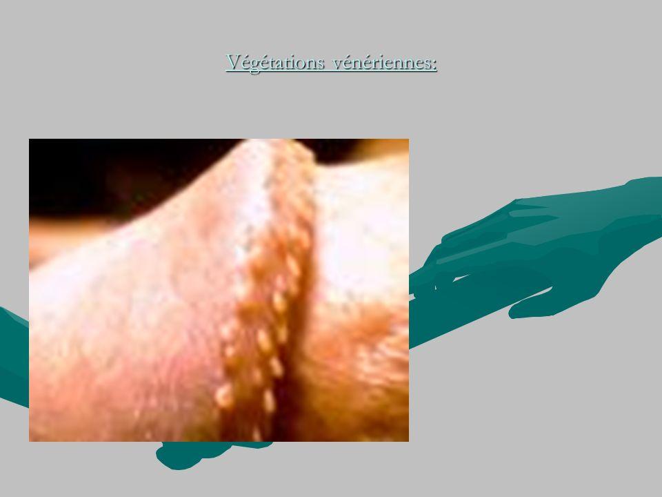 Végétations vénériennes: