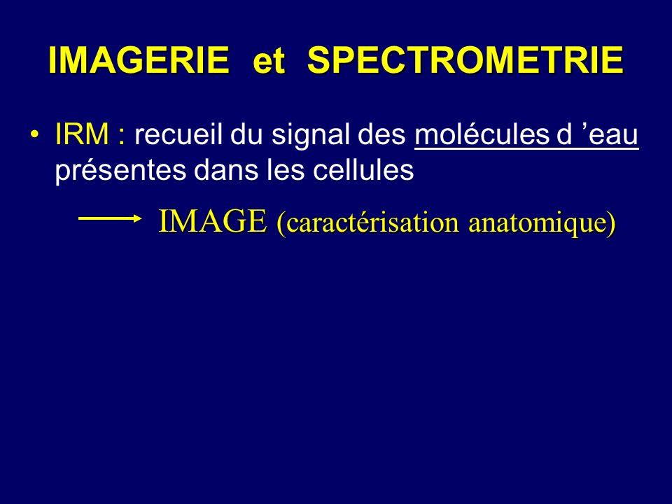 IRM : recueil du signal des molécules d eau présentes dans les cellules IMAGE (caractérisation anatomique)