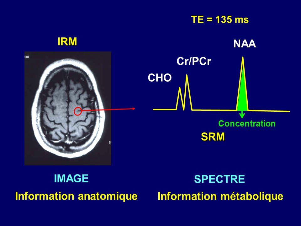 IRM IMAGE Information anatomique SPECTRE Information métabolique Concentration TE = 135 ms SRM NAA Cr/PCr CHO