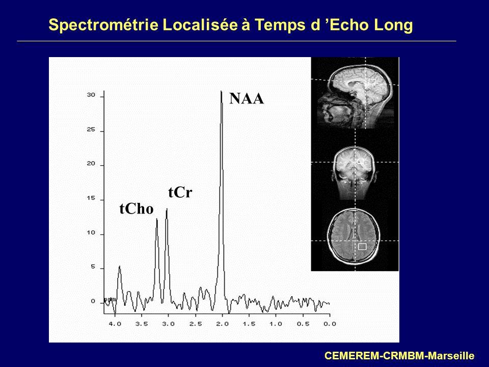 Spectrométrie Localisée à Temps d Echo Long CEMEREM-CRMBM-Marseille NAA tCr tCho