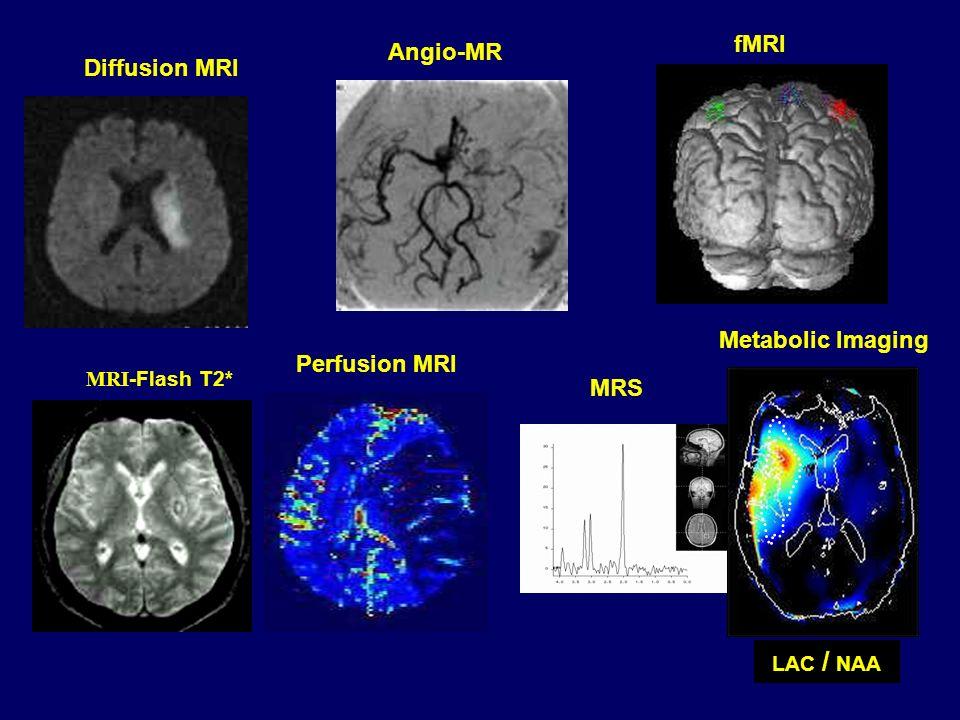 Angio-MR Perfusion MRI Diffusion MRI MRI -Flash T2* MRS fMRI LAC / NAA Metabolic Imaging