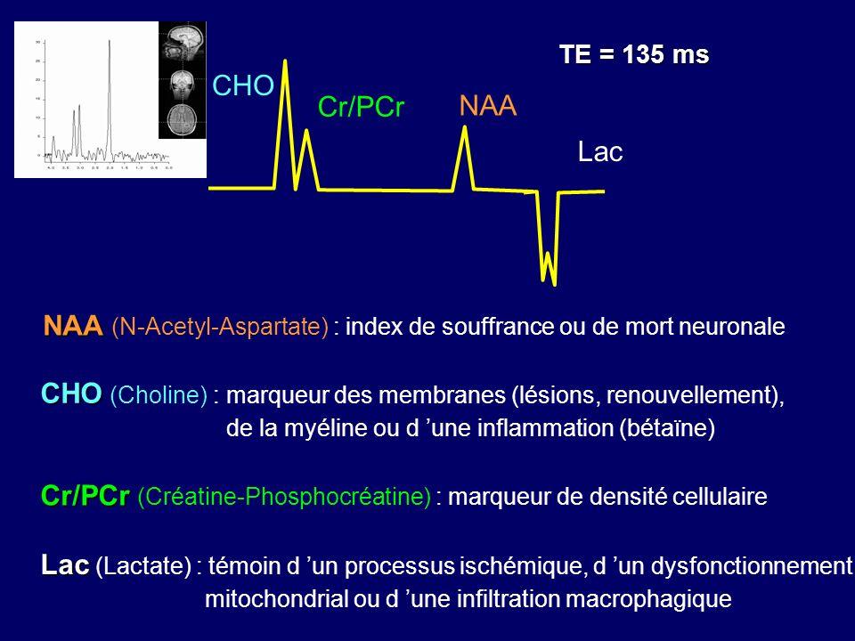 NAA NAA (N-Acetyl-Aspartate) : index de souffrance ou de mort neuronale NAA Cr/PCr CHO Lac TE = 135 ms Lac Lac (Lactate) : témoin d un processus isché