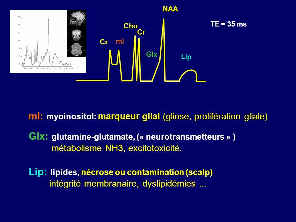 mI: myoinositol: marqueur glial (gliose, prolifération gliale) mI Cho Cr NAA Cr Glx: glutamine-glutamate, (« neurotransmetteurs » ) métabolisme NH3, e