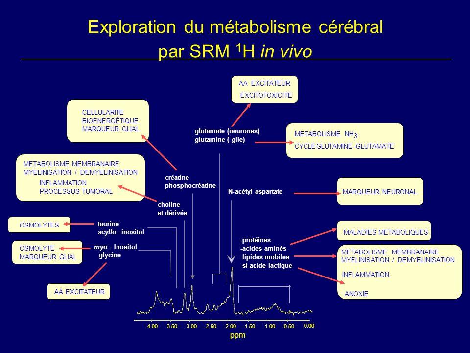 Exploration du métabolisme cérébral par SRM 1 H in vivo AA EXCITATEUR myo-Inositol glycine choline et dérivés créatine phosphocréatine N-acétyl aspart