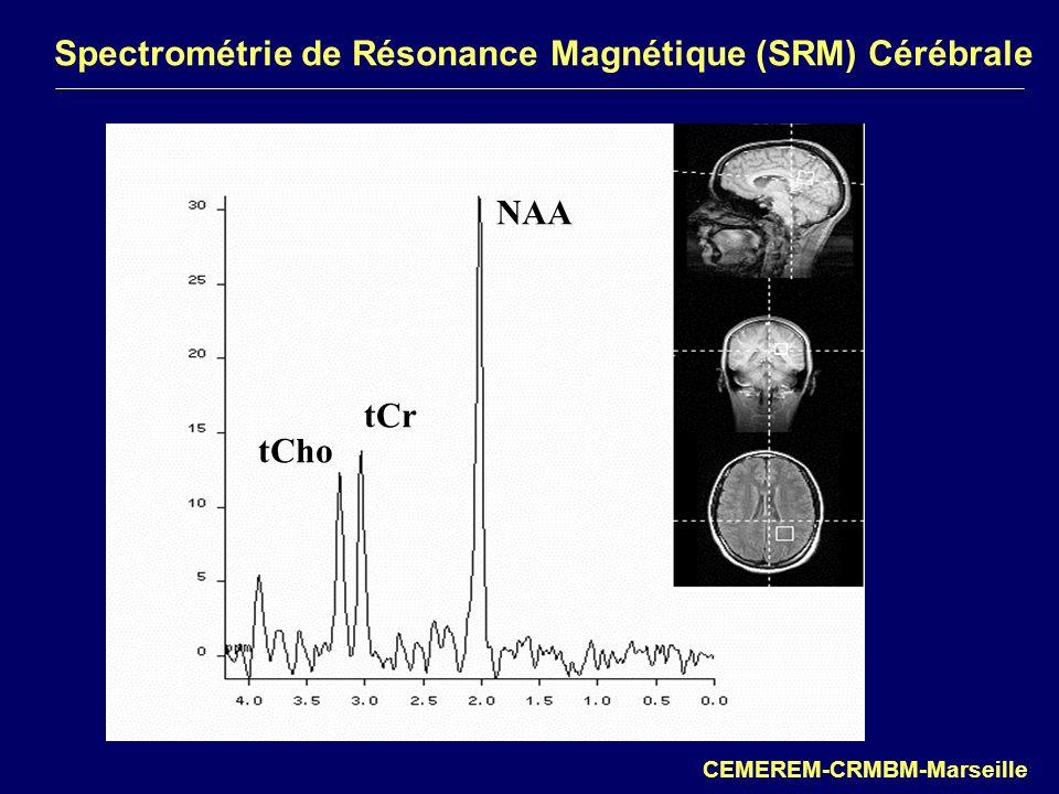 Spectrométrie de Résonance Magnétique (SRM) Cérébrale CEMEREM-CRMBM-Marseille NAA tCr tCho