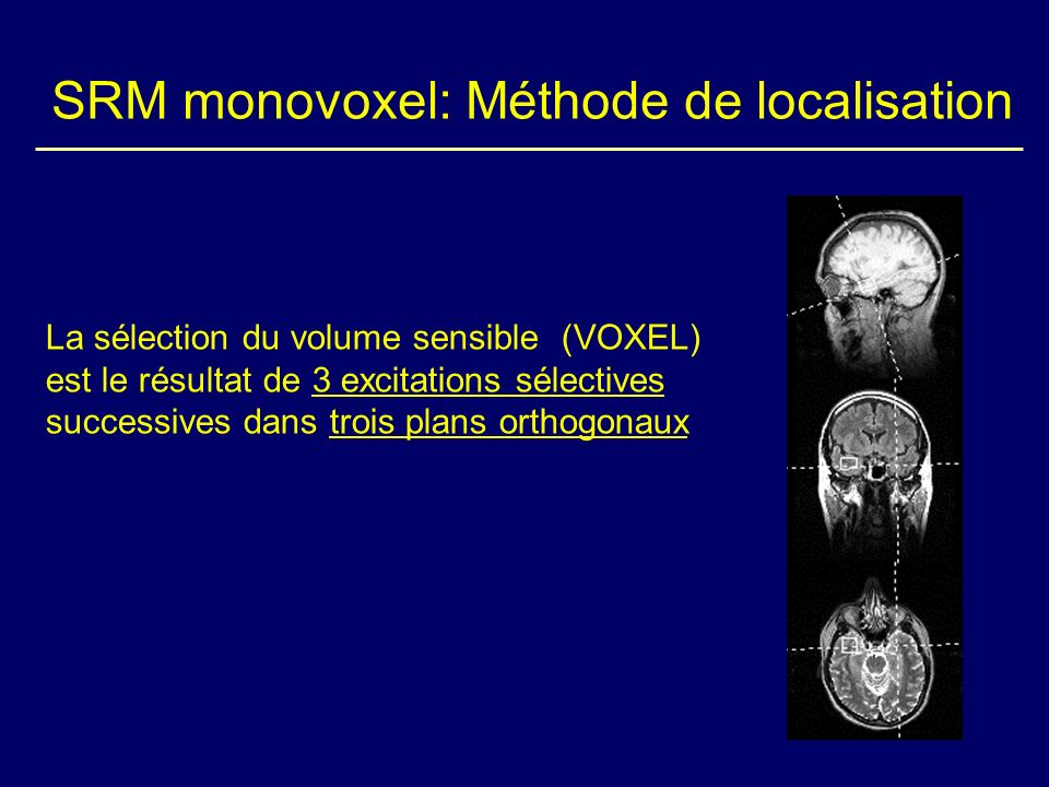SRM monovoxel: Méthode de localisation La sélection du volume sensible (VOXEL) est le résultat de 3 excitations sélectives successives dans trois plan