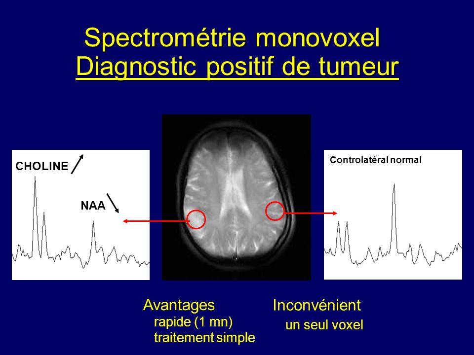 Diagnostic positif de tumeur CHOLINE NAA Controlatéral normal Avantages rapide (1 mn) traitement simple Inconvénient un seul voxel Spectrométrie monov