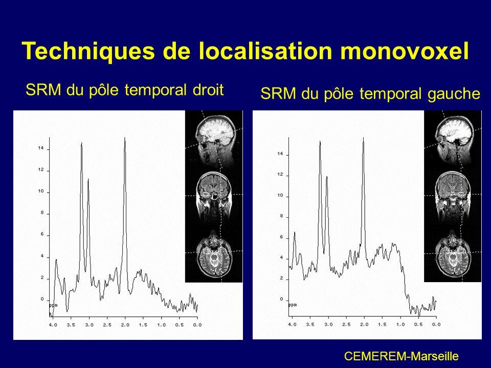Techniques de localisation monovoxel SRM du pôle temporal droit CEMEREM-Marseille SRM du pôle temporal gauche