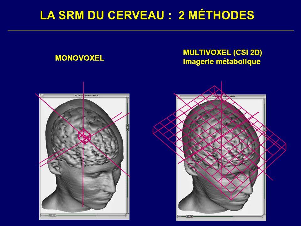 MONOVOXEL MULTIVOXEL MULTIVOXEL (CSI 2D) Imagerie métabolique LA SRM DU CERVEAU : 2 MÉTHODES