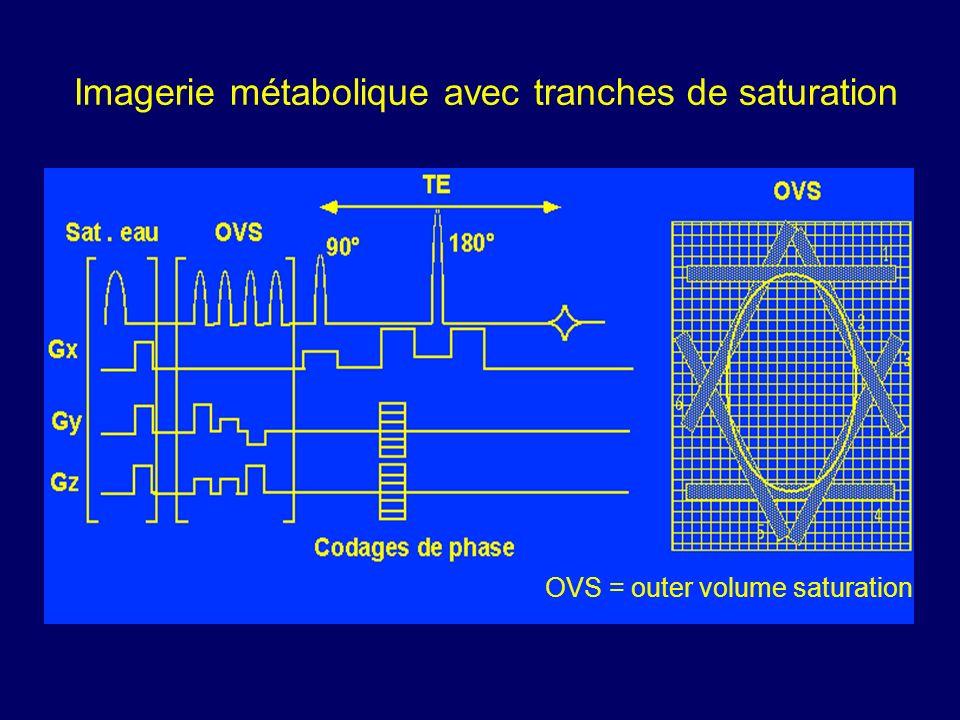 Imagerie métabolique avec tranches de saturation OVS = outer volume saturation