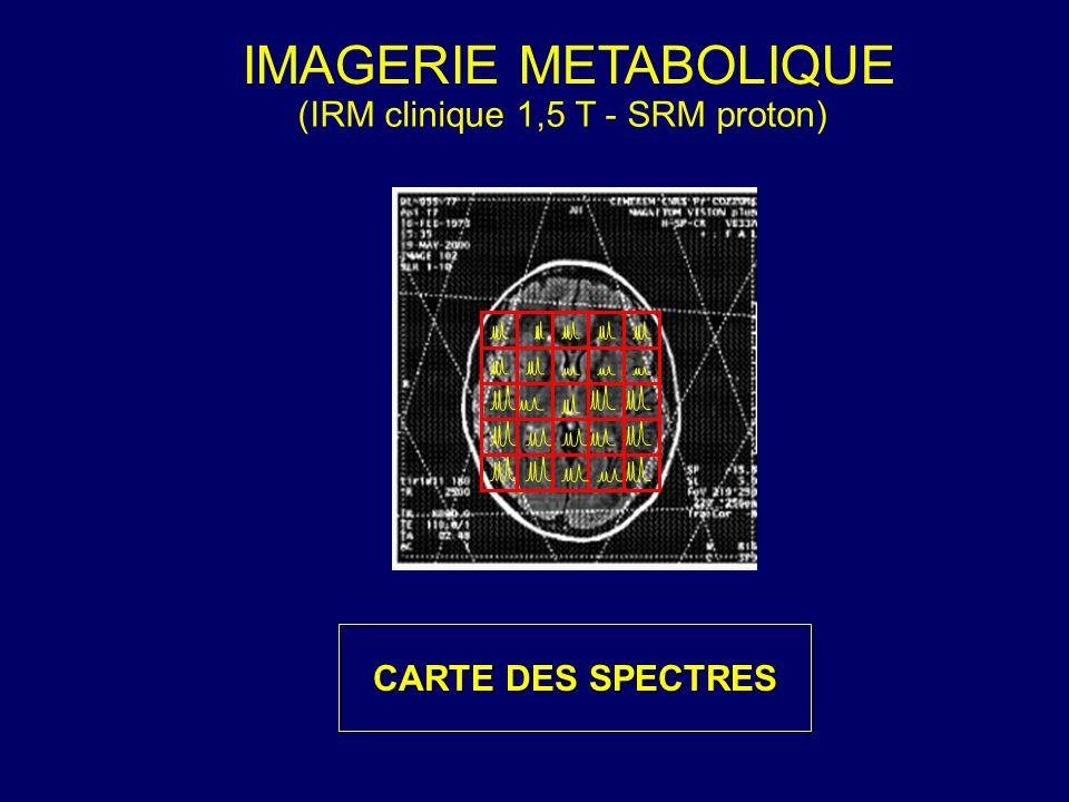 IMAGERIE METABOLIQUE (IRM clinique 1,5 T - SRM proton) CARTE DES SPECTRES