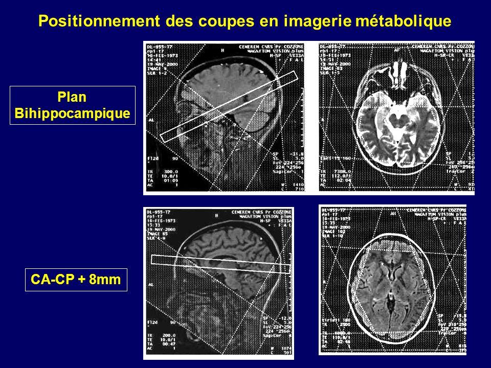 Plan Bihippocampique CA-CP + 8mm Positionnement des coupes en imagerie métabolique