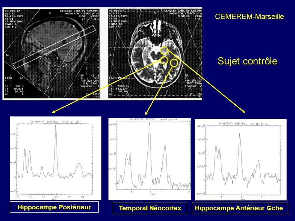 Temporal Néocortex Hippocampe Postérieur Hippocampe Antérieur Gche CEMEREM-Marseille Sujet contrôle