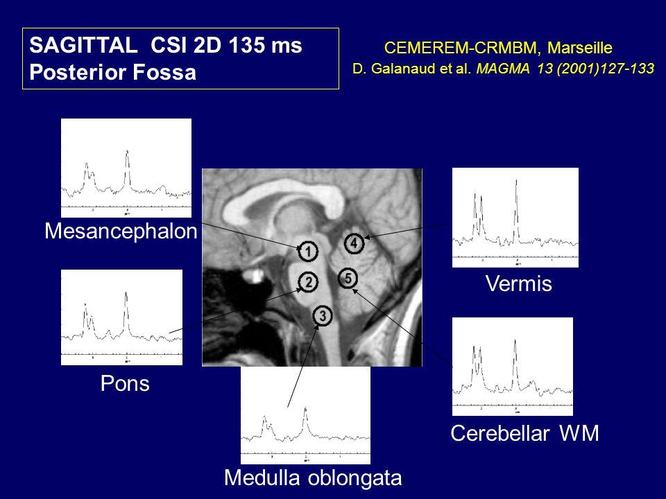 SAGITTAL CSI 2D 135 ms Posterior Fossa D. Galanaud et al. MAGMA 13 (2001)127-133 CEMEREM-CRMBM, Marseille Mesancephalon Cerebellar WM Medulla oblongat