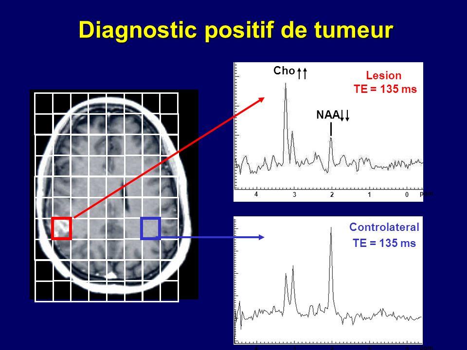 2103 4 ppm Cho NAA 2103 4 ppm Lesion TE = 135 ms Controlateral TE = 135 ms Diagnostic positif de tumeur