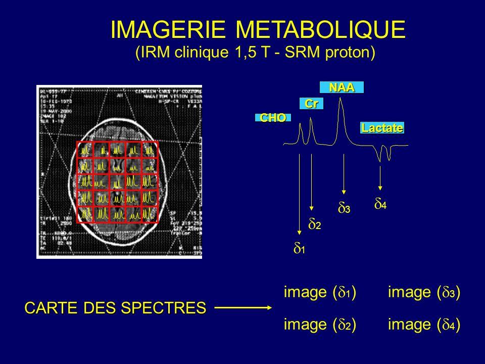 IMAGERIE METABOLIQUE (IRM clinique 1,5 T - SRM proton) CARTE DES SPECTRES 1 2 3 4 image ( 1 )image ( 3 ) image ( 2 )image ( 4 ) NAA Cr CHO Lactate