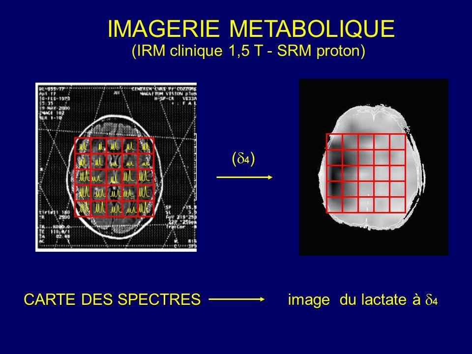 IMAGERIE METABOLIQUE (IRM clinique 1,5 T - SRM proton) CARTE DES SPECTRES image du lactate à 4 ( 4 )