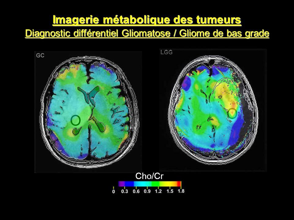 Imagerie métabolique des tumeurs Diagnostic différentiel Gliomatose / Gliome de bas grade Cho/Cr