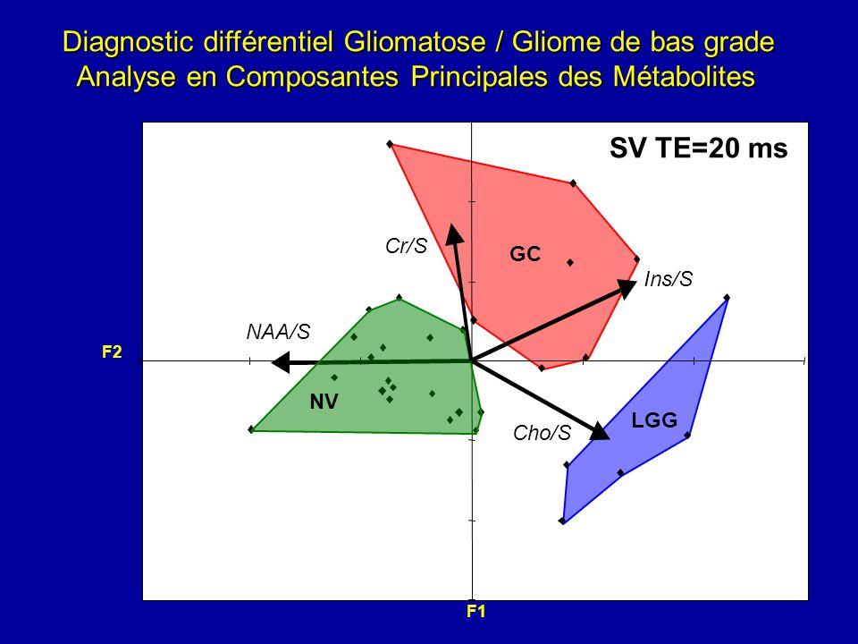 Diagnostic différentiel Gliomatose / Gliome de bas grade Analyse en Composantes Principales des Métabolites Analyse en Composantes Principales des Mét