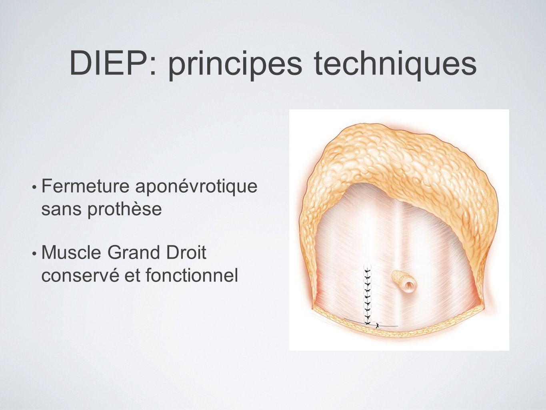 DIEP: principes techniques Fermeture aponévrotique sans prothèse Muscle Grand Droit conservé et fonctionnel