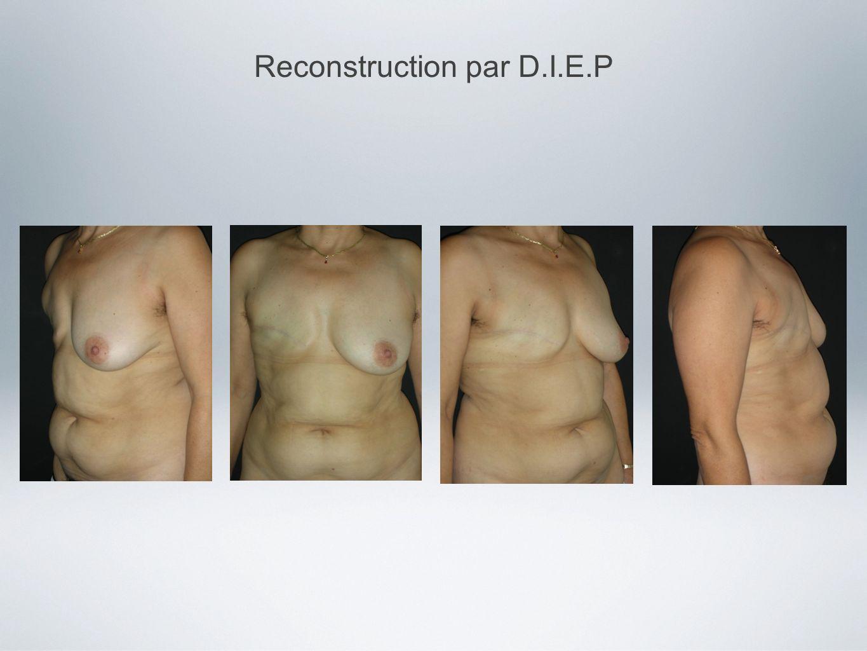 Reconstruction par D.I.E.P