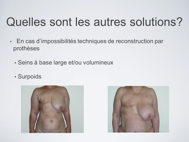Quelles sont les autres solutions? En cas dimpossibilités techniques de reconstruction par prothèses Seins à base large et/ou volumineux Surpoids