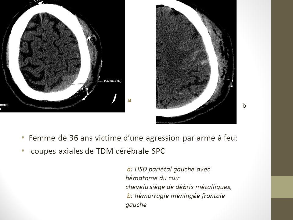 Femme de 36 ans victime dune agression par arme à feu: coupes axiales de TDM cérébrale SPC a: HSD pariétal gauche avec hématome du cuir chevelu siège