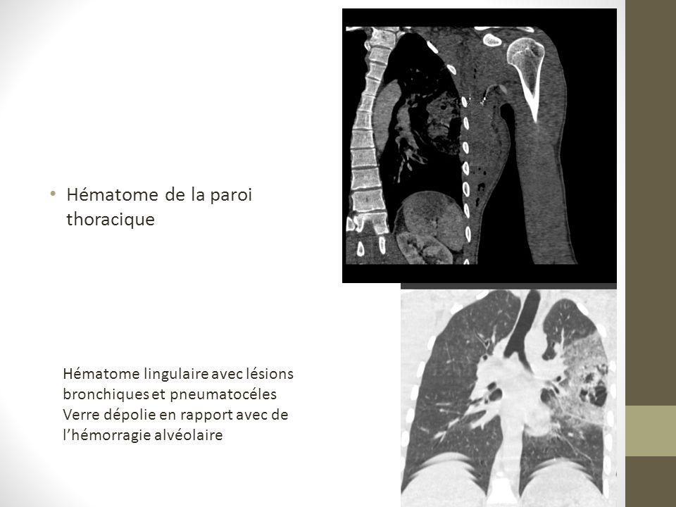 Hématome de la paroi thoracique Hématome lingulaire avec lésions bronchiques et pneumatocéles Verre dépolie en rapport avec de lhémorragie alvéolaire