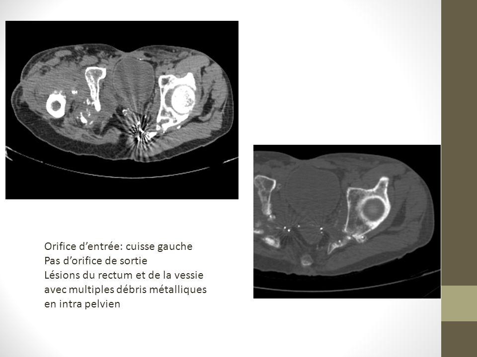 Orifice dentrée: cuisse gauche Pas dorifice de sortie Lésions du rectum et de la vessie avec multiples débris métalliques en intra pelvien
