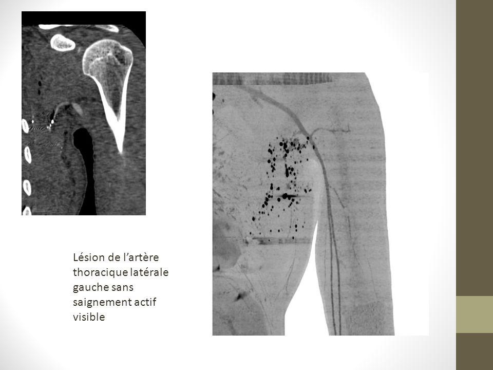 Lésion de lartère thoracique latérale gauche sans saignement actif visible