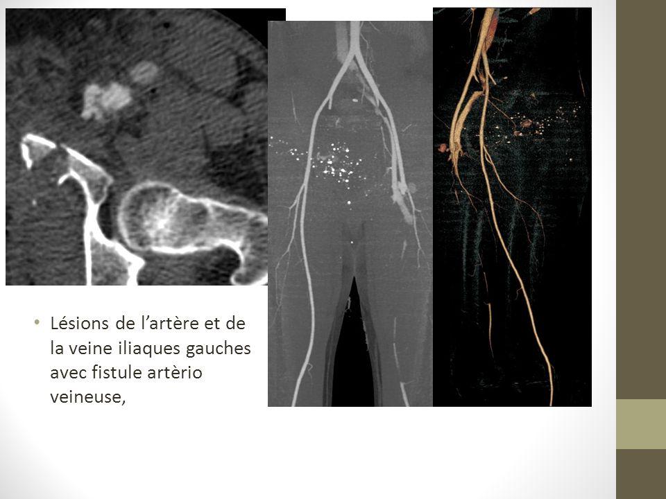 Lésions de lartère et de la veine iliaques gauches avec fistule artèrio veineuse,