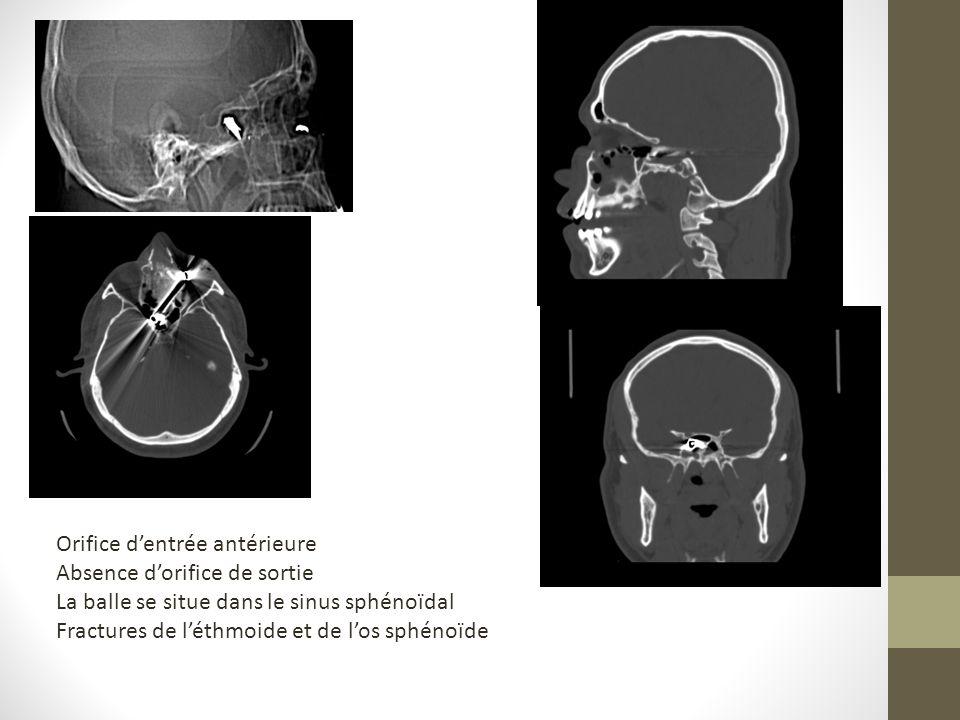 Orifice dentrée antérieure Absence dorifice de sortie La balle se situe dans le sinus sphénoïdal Fractures de léthmoide et de los sphénoïde