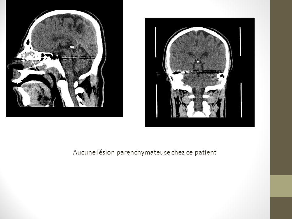 Femme de 36 ans victime dune agression par arme à feu: coupes axiales de TDM cérébrale SPC a: HSD pariétal gauche avec hématome du cuir chevelu siège de débris métalliques, b: hémorragie méningée frontale gauche a b