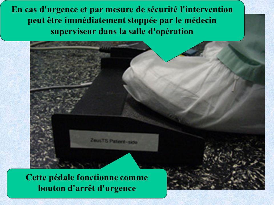 En cas d urgence et par mesure de sécurité l intervention peut être immédiatement stoppée par le médecin superviseur dans la salle d opération Cette pédale fonctionne comme bouton d arrêt d urgence
