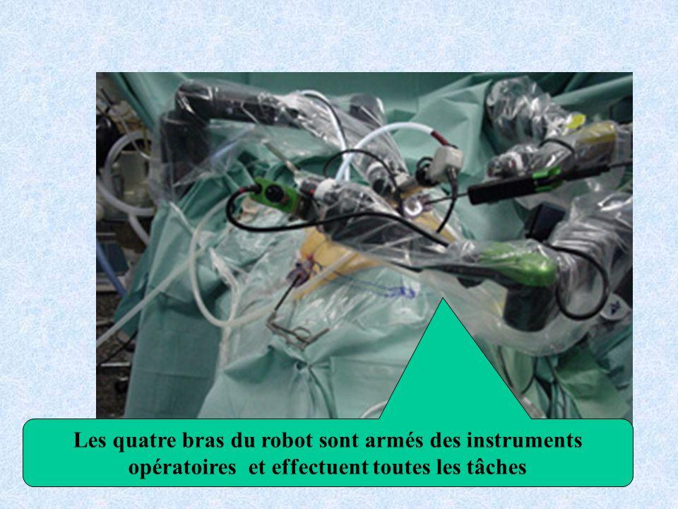 Les quatre bras du robot sont armés des instruments opératoires et effectuent toutes les tâches