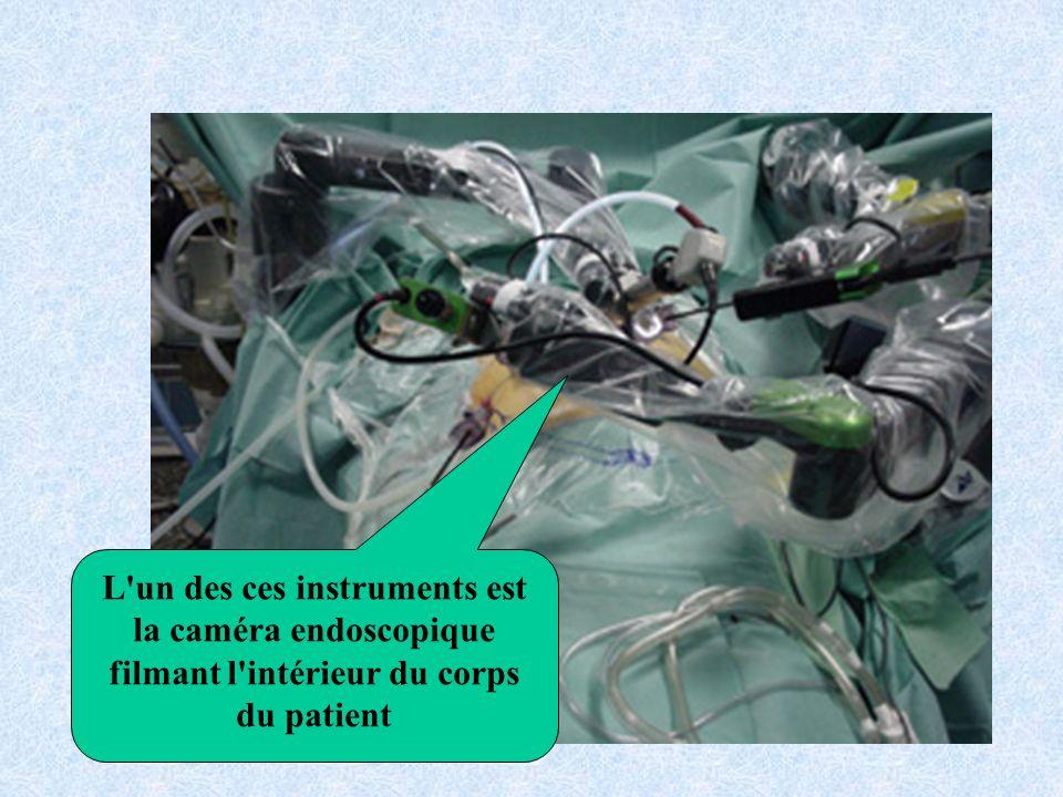 L un des ces instruments est la caméra endoscopique filmant l intérieur du corps du patient