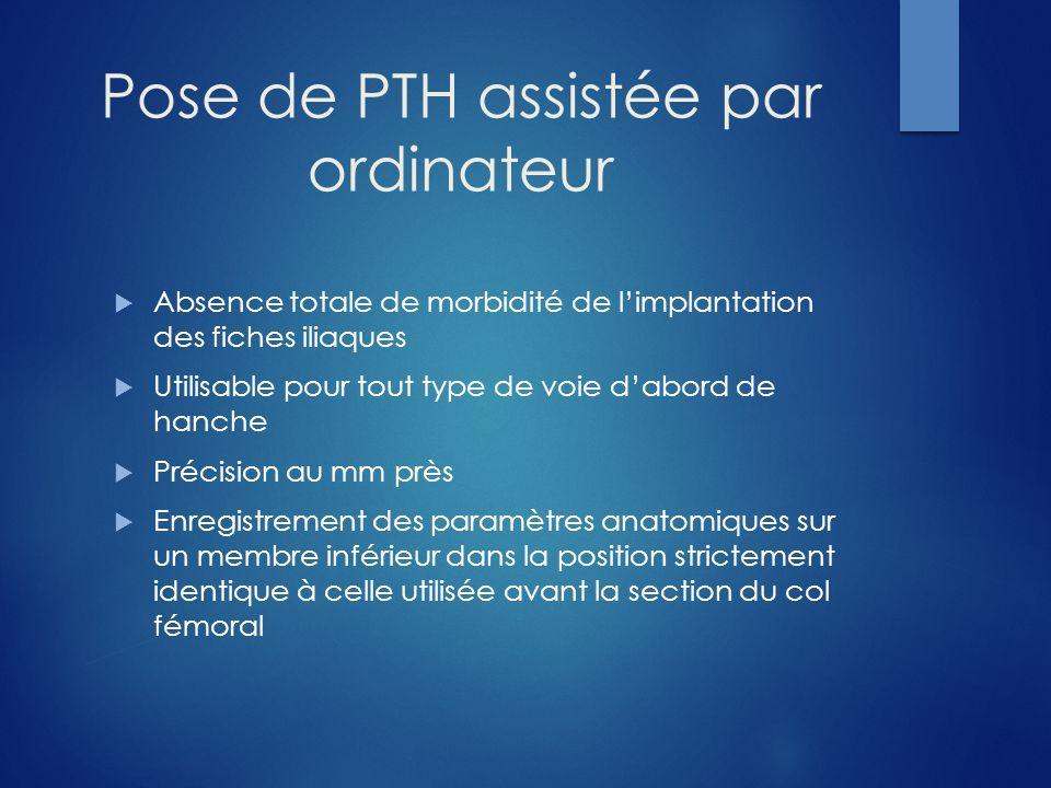 Pose de PTH assistée par ordinateur Absence totale de morbidité de limplantation des fiches iliaques Utilisable pour tout type de voie dabord de hanch